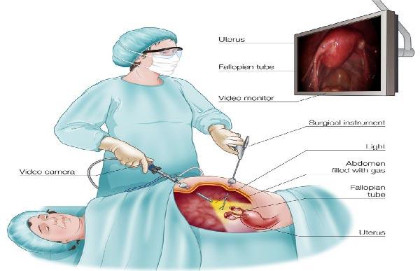 عمل لاپاراسکوپی کیست تخمدان